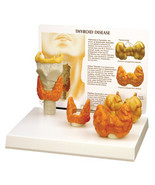 NEW Anatomical Set of 4 Thyroid Cancer Model WOW! - $77.75