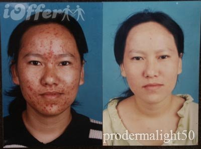 Tretinoin Before And After Acne Accutane Severe Acne Before