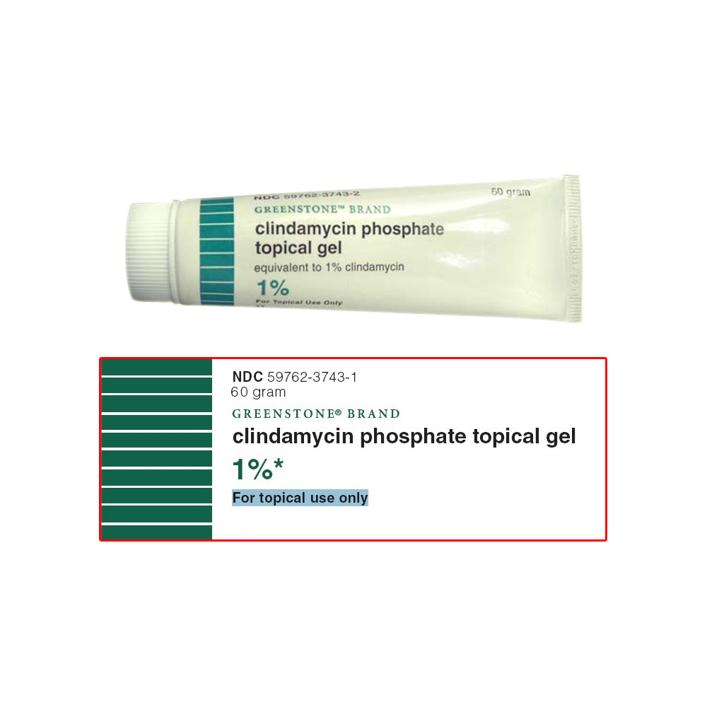 Clindamycin Phosphate Topical Solution